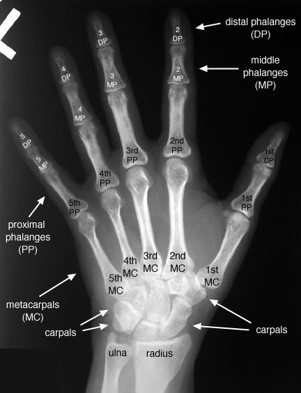 Skeletal Anatomy For Student Radiographers